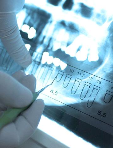osteonecrosis-maxilofacial